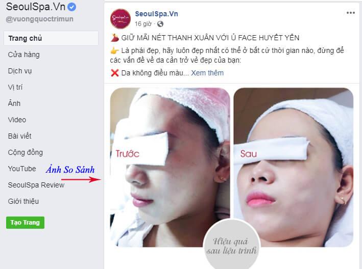 Ảnh trước và sau khi sử dụng sản phẩm bị cấm khi chạy quảng cáo trên Facebook.